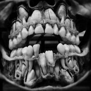 Baby Teething Jaw