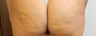 Pregnancy Cellulite